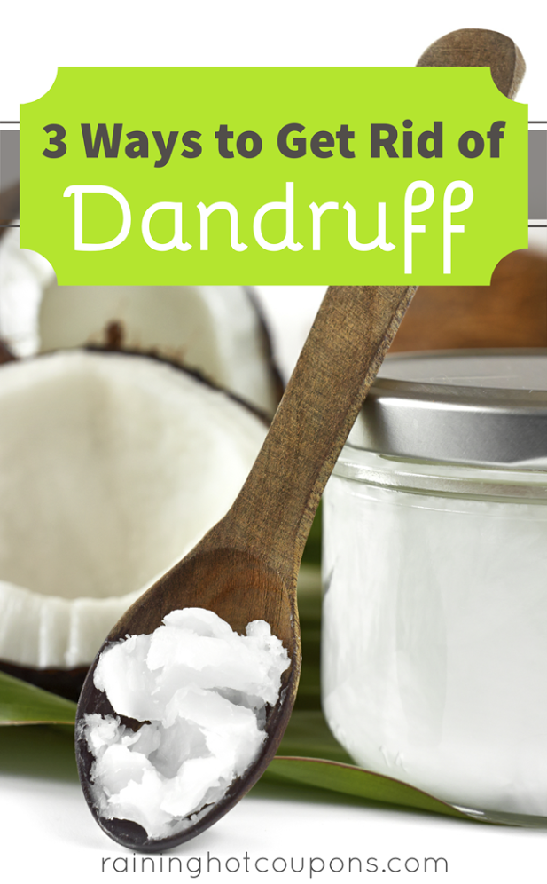 dandruff 3 Ways to Get Rid of Dandruff