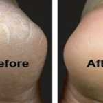 Cracked Heel Remedy (Make your Feet and Heels Super Soft!)